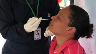 Photo of Continúa la toma de prueba de antígeno para COVID-19 sin ningún costo